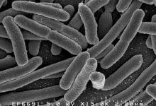 Photo of رویکرد ژنتیکی القاء کننده برای ممانعت از میکروبهای مقاوم به آنتیبیوتیک
