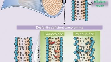Photo of Stabilizing dysferlin-deficient muscle cell membrane improves muscle function