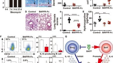Photo of Regulatory and effector B cells control scleroderma