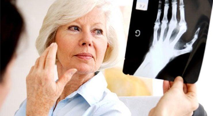 استفاده از نانواسفنجهای نوتروفیل جهت درمان آتریت روماتوئید