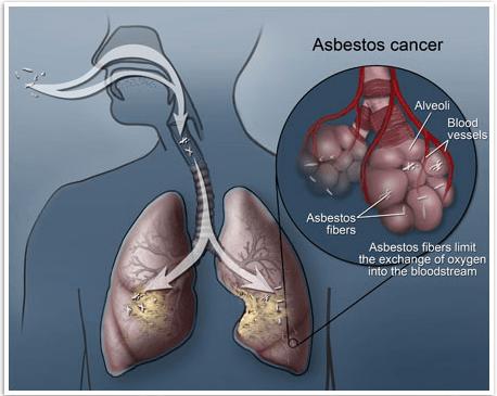 ارتباط آزبست و سرطان