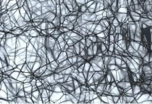 Photo of درک جدیدی از آلزایمر به کمک مدلسازی بیان ژن