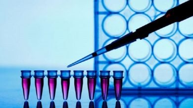 Photo of New assay to detect genetic abnormalities in sarcomas