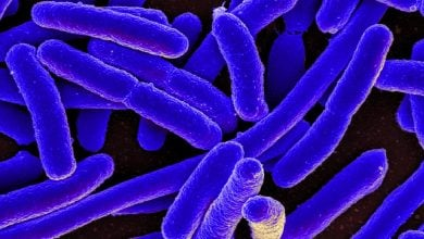 Photo of The unexpected upside of E. coli