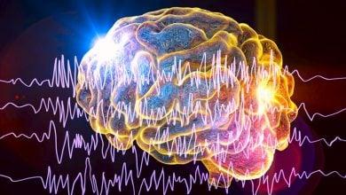 ریتم نامنظم قلبی مغزی و ابتلا به صرع