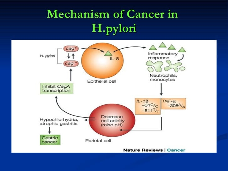 helicobacter pylori and cancer