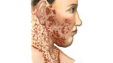 اختلال سلولهای ایمنی در پدیده حساسیت به نور