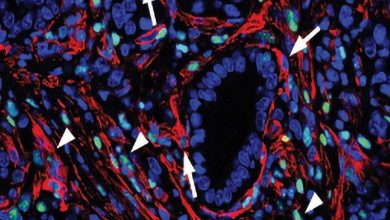 Photo of به کارگیری فیبروبلاستها در درمان سرطان پانکراس