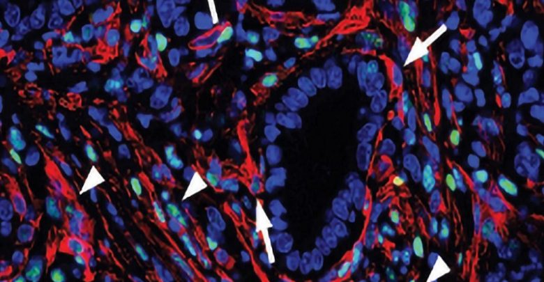 فیبروبلاستها و سرطان پانکراس