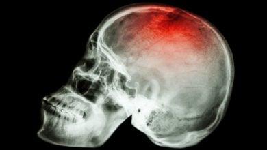 ترومای مغز