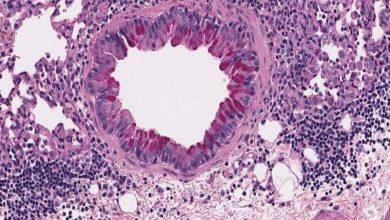 قارچهای رودهای و اختلالات آلرژیک سیستم تنفسی