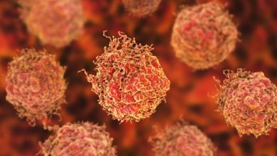 Photo of Nanoparticle therapeutic restores function of tumor suppressor in prostate cancer