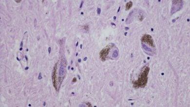 Photo of اثربخشی اصلاح پروتئین برای درمان پارکینسون