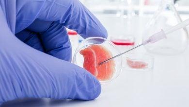 Photo of تولید غضروف انسان از سلولهای بدن