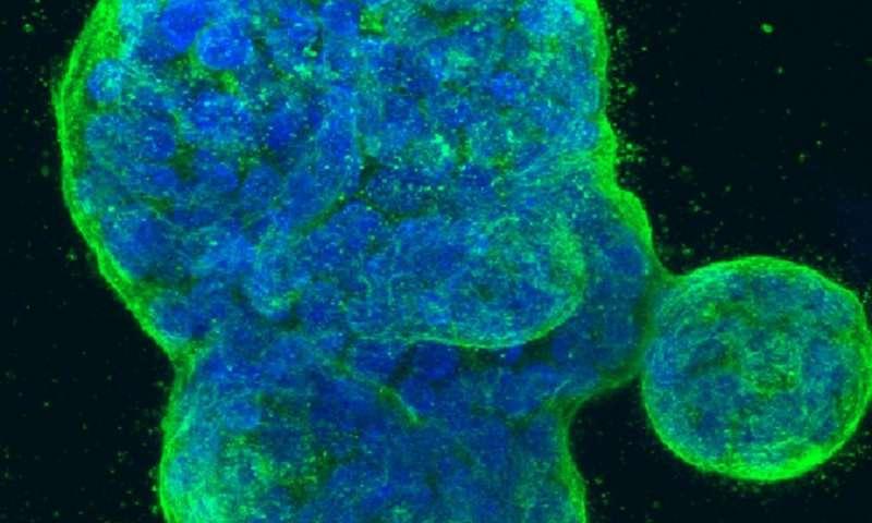 تشخیص تومورهای سرطان پستان