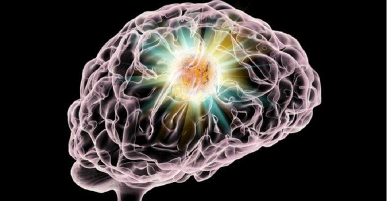 تشخیص سرطان مغز با استفاده از مواد رادیواکتیو