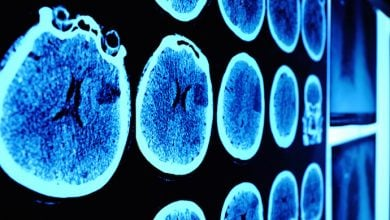 تشخیص سرطان پستان متاستاتیک به کمک Deep Learning