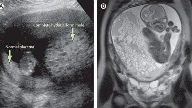 Photo of علل ژنتیکی مرتبط با حاملگیهای غیرطبیعی و سقط جنین