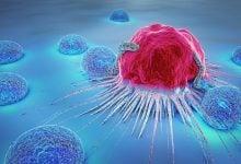 تعامل بین سلولهای تومور و سلولهای ایمنی در سرطان ریه