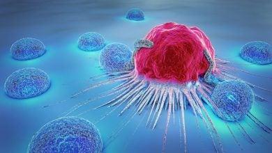 Photo of تعامل بین سلولهای تومور و سلولهای ایمنی در سرطان ریه