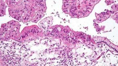 Photo of آزمایش خون برای تشخیص زودهنگام سرطان تخمدان