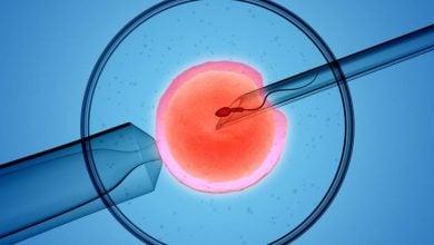 Photo of سرعت بخشیدن به فرایند IVF