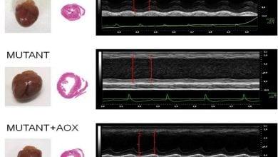 راهکار درمانی جدید برای اختلالات میتوکندریایی
