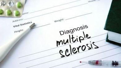 Photo of بهبود علائم مالتیپل اسکلروزیس با ایمنی درمانی