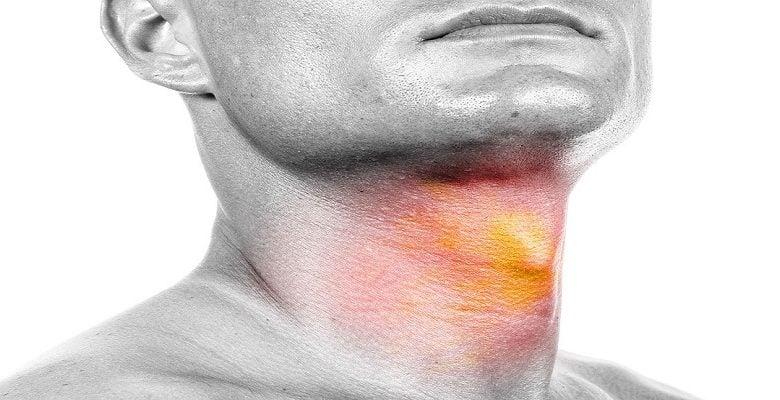 ایمونوتراپی برای درمان سرطان سر و گردن