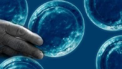 Photo of روند پیری سلول در بیماریهای عصبی