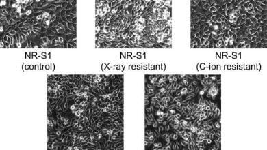 Photo of تمایز بین سلولهای سرطانی به کمک هوش مصنوعی