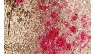 کاهش پروتئینهای مخرب آلزایمر