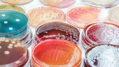 Photo of تکنولوژی جدید تسریع تشخیص عفونتهای خونی