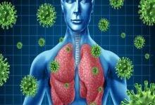 درمان عفونتهای ریوی