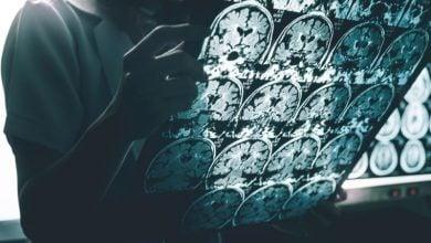 نقش ژن نوترکیب در آلزایمر