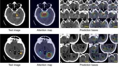 Photo of تشخیص و طبقهبندی خونریزی مغزی با هوش مصنوعی
