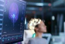Photo of تبدیل مستقیم سیگنالهای مغزی به کلام