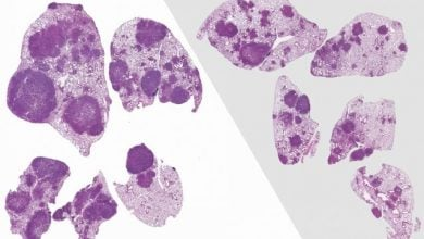 Photo of اثر باکتریها بر پیشرفت سرطان ریه