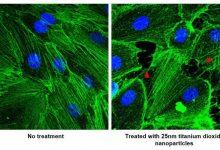 Photo of نقش نانوذرات در گسترش متاستاز سرطان