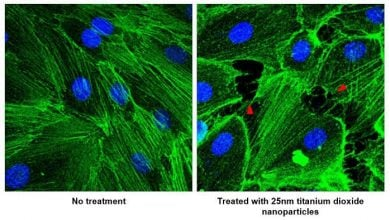 نقش نانوذرات در گسترش متاستاز سرطان