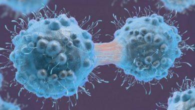 بیومارکر سرطان مثانه