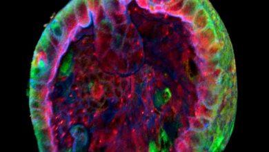 Photo of ابتکار جدید در رشد سلولهای کلیه