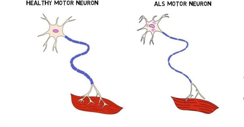 بیماری ALS