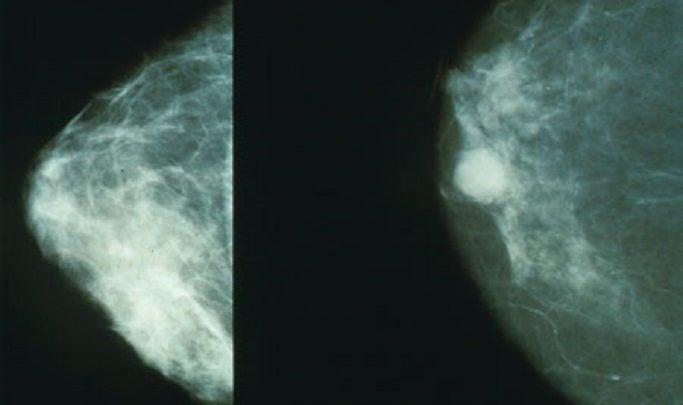 سرطان سینه تهاجمی