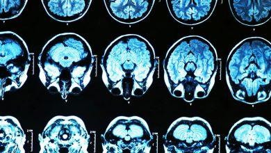 Photo of ژندرمانی راه حلی برای پیشگیری آلزایمر