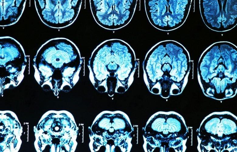 پیشگیری آلزایمر
