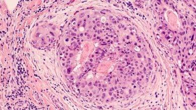 Photo of تضعیف متاستاز سرطان به کمک نانوحاملین طلا