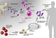Photo of بالینی شدن رویکردهای سلولدرمانی و پزشکی بازساختی