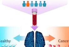 Photo of تشخیص انواع مختلف سرطان به کمک آزمایش خون DELFI