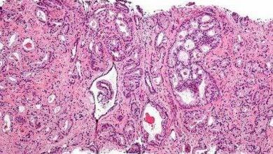 Photo of شناسایی پروتئینهای موثر در گسترش سرطان پروستات